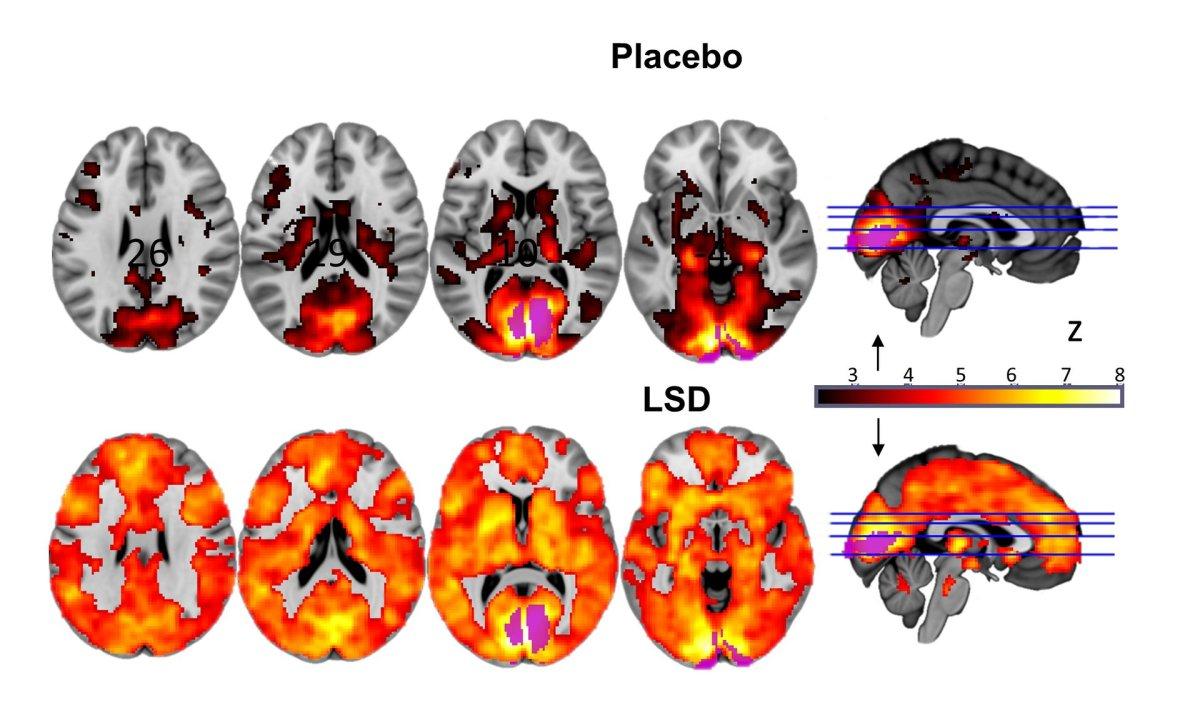 LSD, the Brain, and AldousHuxley